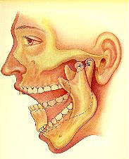 caries dentaires et sinusites
